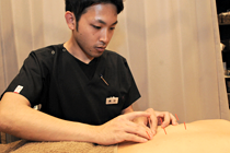 鍼灸(はり・きゅう)