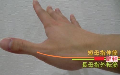 使い過ぎによる手や指の痛み